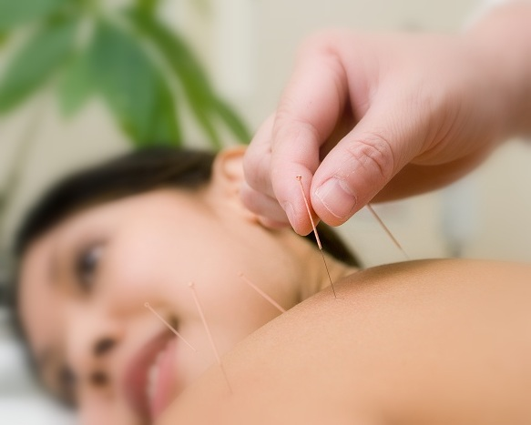 How Acupuncture Can Rejuvenate Your Skin